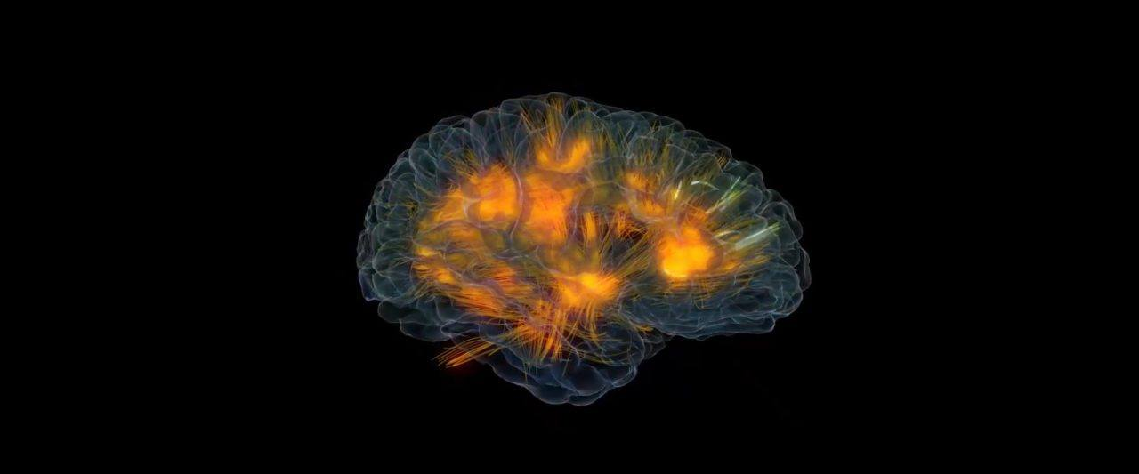 bwrt-brain